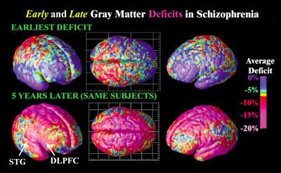 Brain Change Derived From High Resolution Magnetic Resonance Images MRI Scans The Above Were Acquired By Repeatedly Scanning Same Subjects