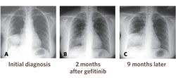 <figcaption>Chest X-rays of a 56-year-old female who had never smoked revealed a mass in the right lower lung (A). Although marked decrease in tumor size occurred two months after gefitinib was initiatiated (B), the tumor progressed nine months later. (From C.H. Gow et al., PLoS Medicine, 2: e269, 2005.) Credit: © 2005 C.H. GOW</figcaption>