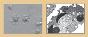 <figcaption>Apoptosing HeLa (left) and Burkitt's lymphoma BL30A cells. Note the membrane