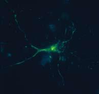 <figcaption>Mitochondria labeled with a fluorescent calcium sensor (green) in a live neuron. Credit: Anna Barsukova</figcaption>