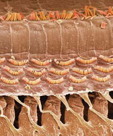<figcaption>Colored scanning electron micrograph of hair cells in a cochlea. Three rows of outer hair cells are thought to amplify sound signals that a single row of inner hair cells sends to the auditory nerve. Credit: &#169; SPL / Photo Researchers, Inc.</figcaption>