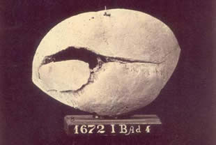 <figcaption>James Bedell's cranium was cracked by a Confederate saber