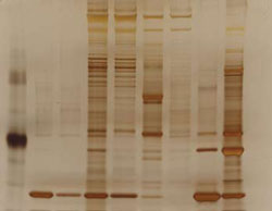 <figcaption>For tandem affinity purification, purified proteins are visualized on a silver-stained gel, then analyzed by liquid chromatographytandem mass spec. Credit: Tilmann Buerckstuemmer and Giulio Superti-Furga / Center for Molecular Medicine of the Austrian Academy of Sciences</figcaption>