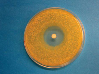 <figcaption>When a new antibiotic isolated from Rhodococcus fascians
