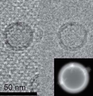 <figcaption>An EM image of liposomes tethered to a streptavidin crystal, frozen in a thin layer of vitreous ice. Left: raw micrograph; Right: the same after the crystal periodicity is removed computationally; Inset: a model image of the large liposome, which contains three copies of a membrane protein, the BK potassium channel. Credit: Courtesy of Liguo Wang and Fred Sigworth</figcaption>