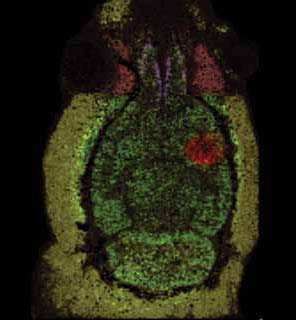 <figcaption>The axial section of a mouse head showing molecular markers in different colors, including a protein uniquely found in the grey matter (bright green), a molecule uniquely found in growing tumors (red) and one specific for muscle (yellow-green). Credit: Courtesy of Erin Seeley and Richard Caprioli</figcaption>