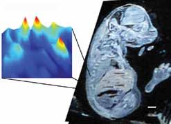 <figcaption>Nanostructure-Initiator Mass Spectrometry (NIMS) imaging of a mouse embryo section. Credit: Courtesy of Trent Northen</figcaption>